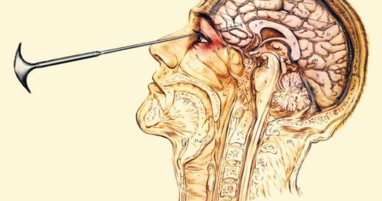 Sekáč na ľad cez očnicu do mozgu – desivá história lobotómií