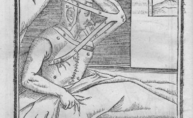 Plastická chirurgia v 16. storočí